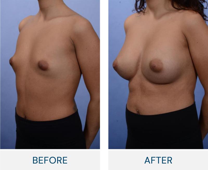 case 100 breast augmentation