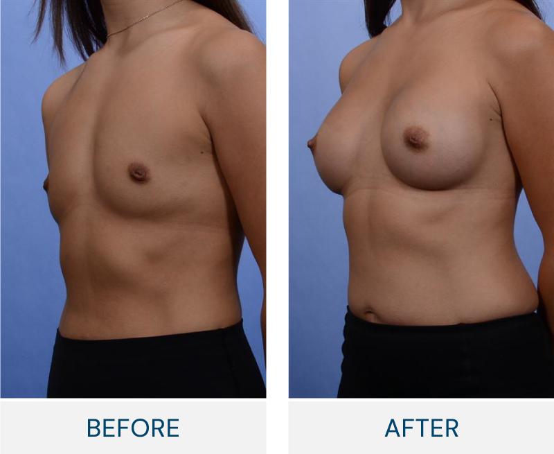 case 102 breast augmentation