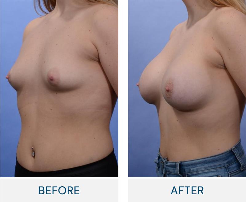case 106 breast augmentation