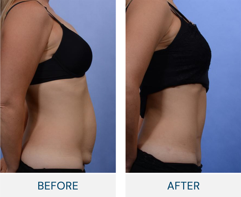 tummy tuck macleod trail plastic surgery calgary before and after