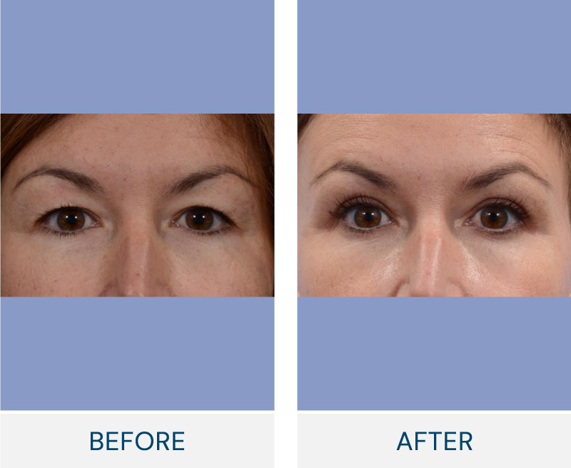 Eyelid Surgery (Blepharoplasty) case 117
