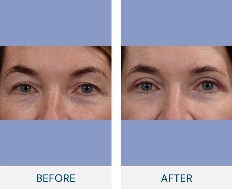 Eyelid Surgery (Blepharoplasty) case 119
