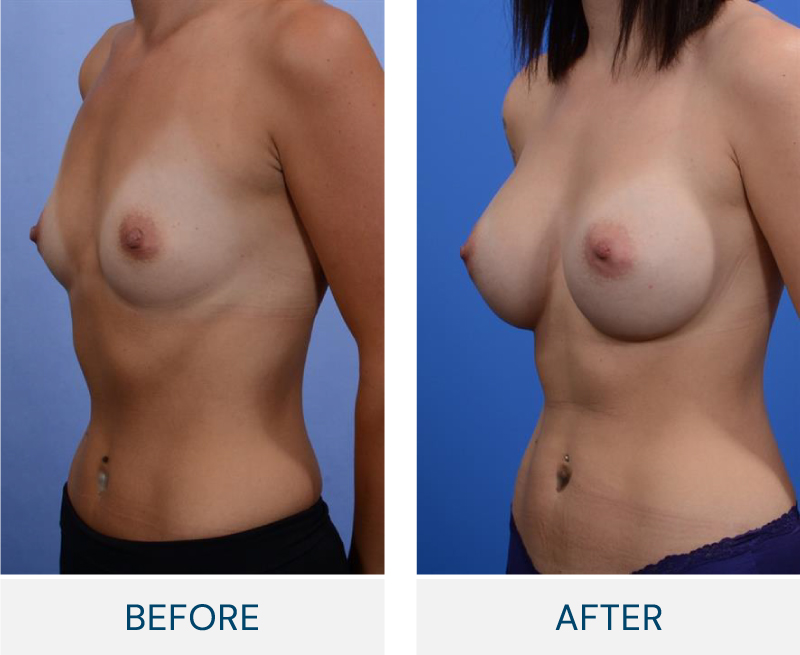 case 121 breast augmentation
