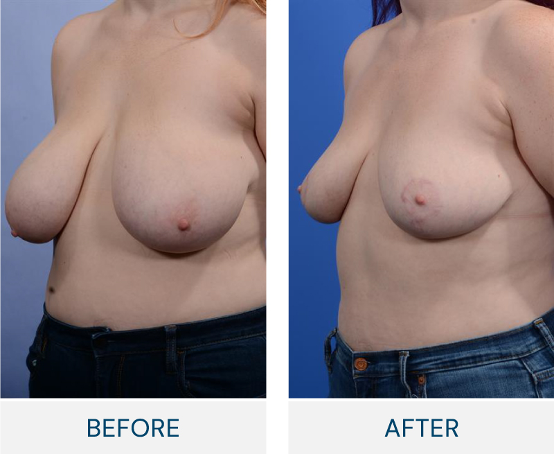 Breast Reduction case 128