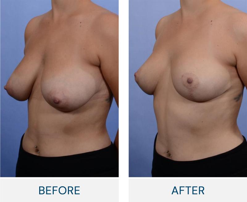Breast Lift (Mastopexy) case 129
