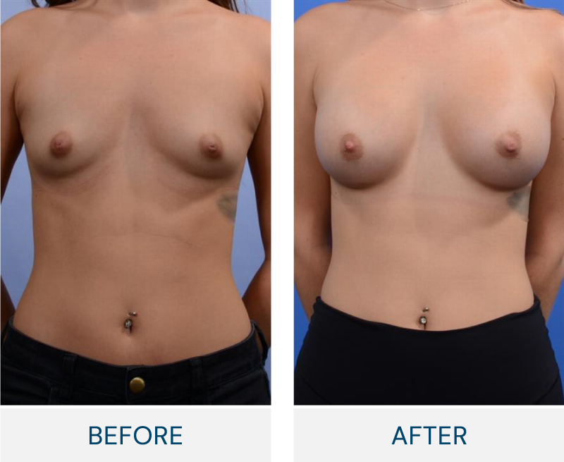 case 132 breast augmentation