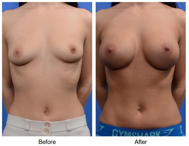case 134 breast augmentation