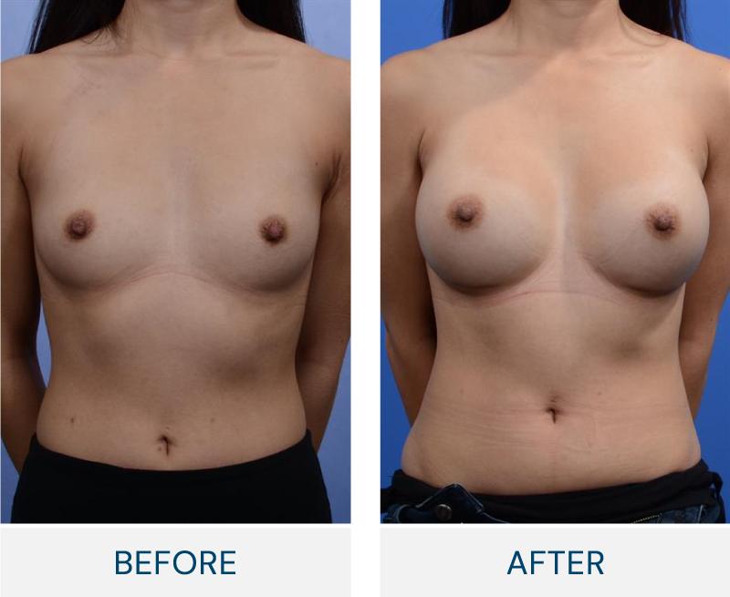 case 137 breast augmentation