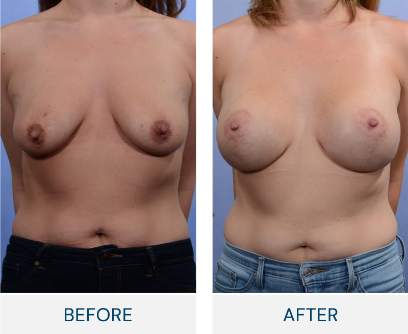 Breast Augmentation with Lift case 138