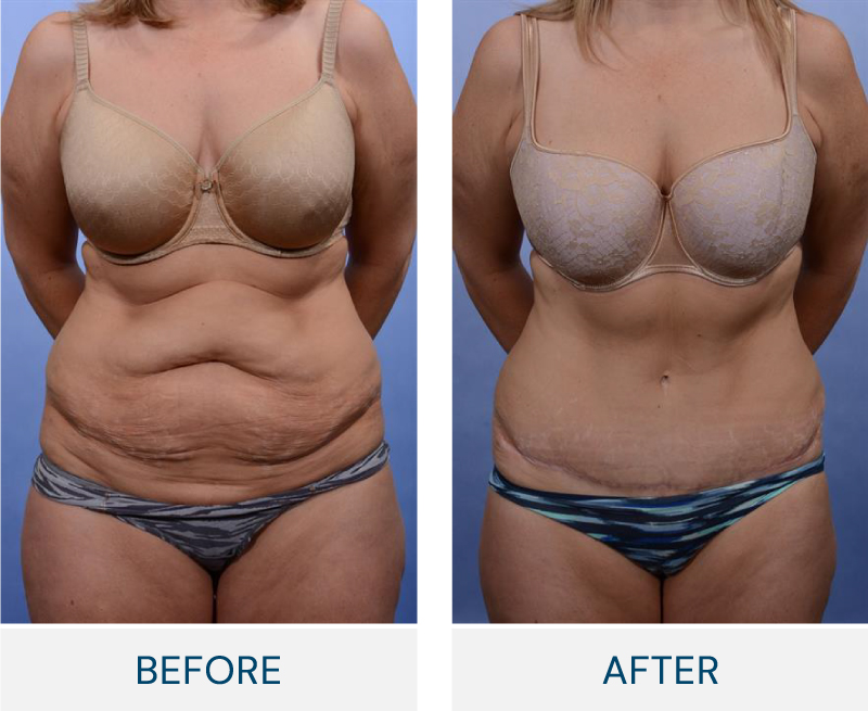 tummy tuck case 17