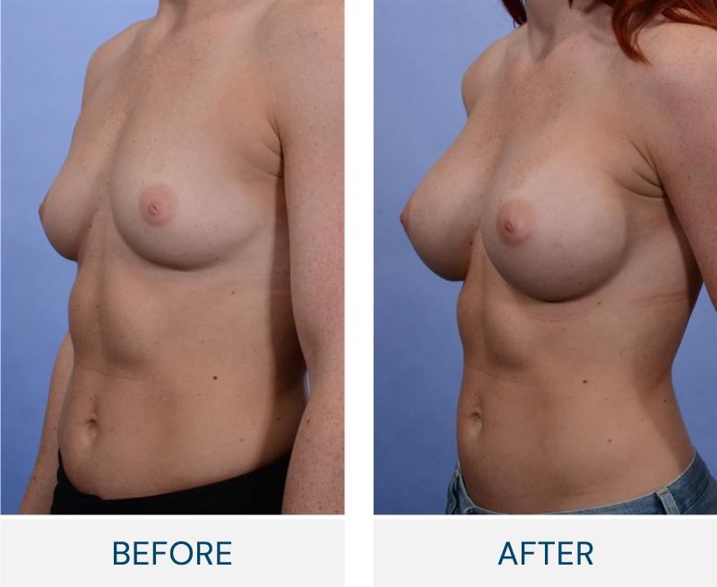 case 23 breast augmentation