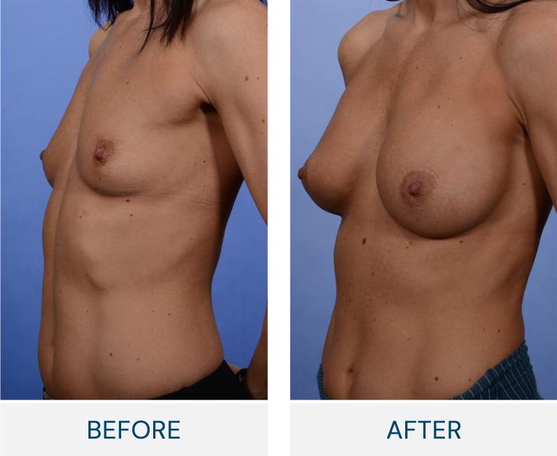 case 26 breast augmentation