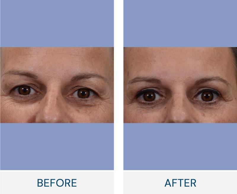 Eyelid Surgery (Blepharoplasty) case 31