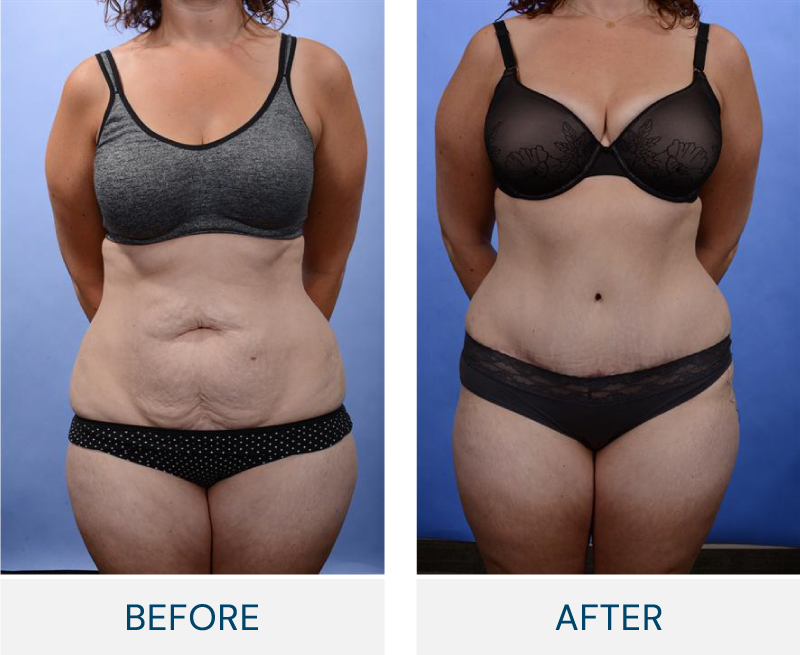 tummy tuck macleod traild plastic surgery calgary before and after