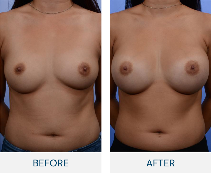case 37 breast augmentation