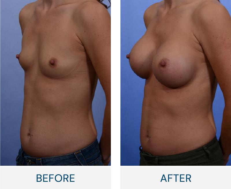 case 38 breast augmentation