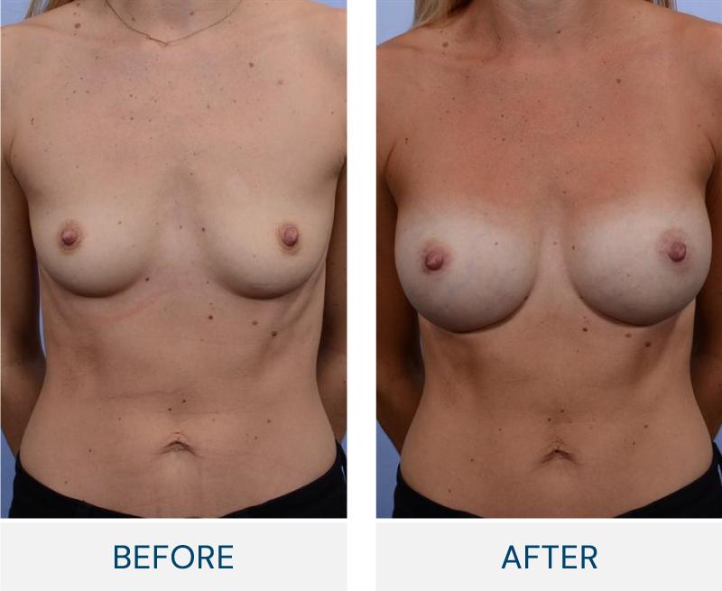 case 43 breast augmentation