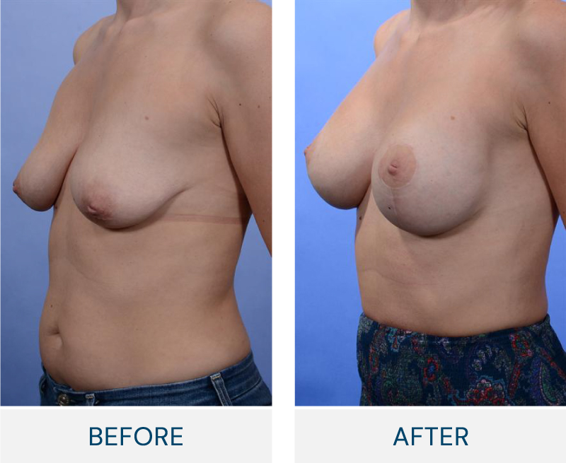case 52 before and after