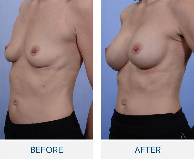 case 55 breast augmentation