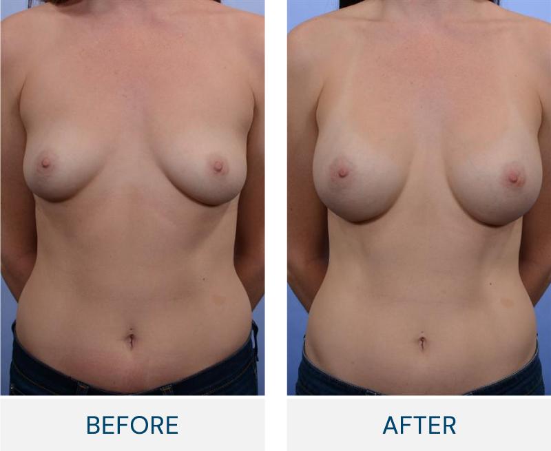 case 57 breast augmentation