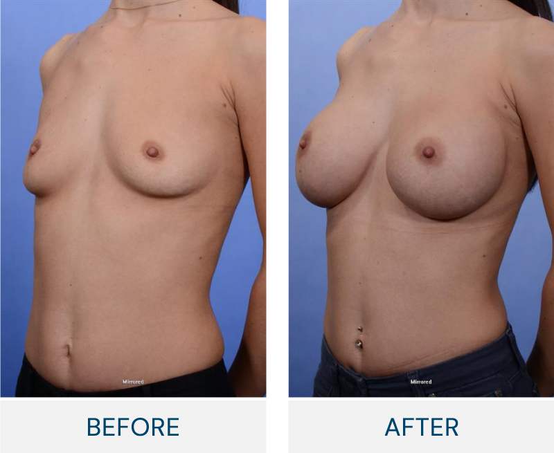 case 60 breast augmentation