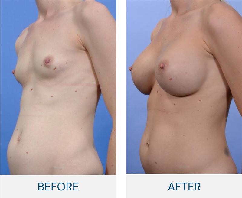 case 61 breast augmentation
