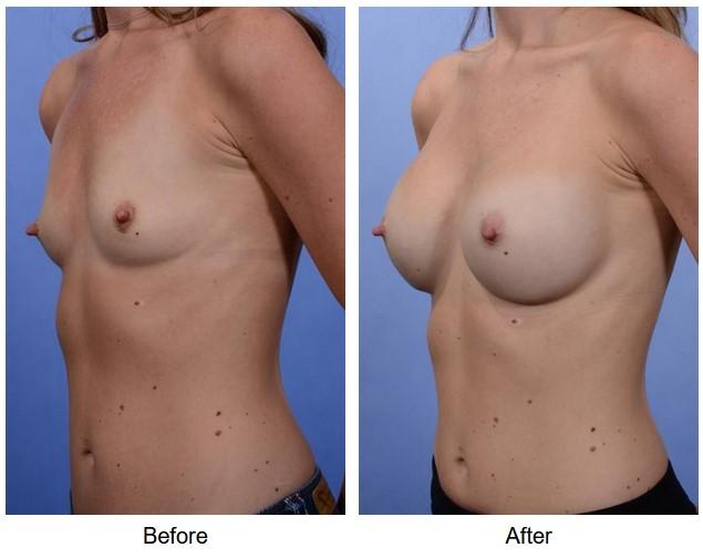case 64 breast augmentation
