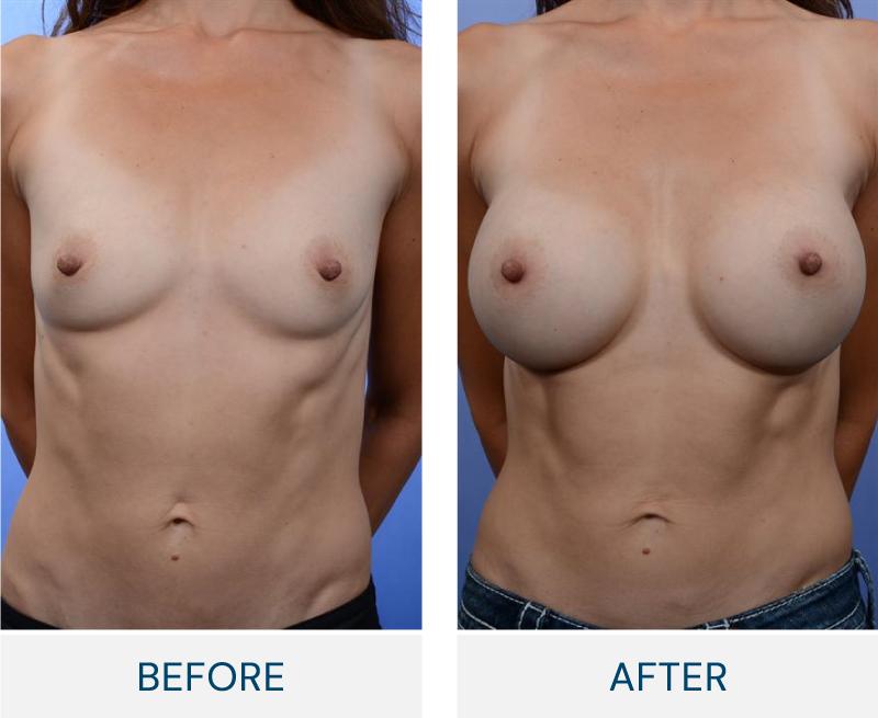 case 65 breast augmentation