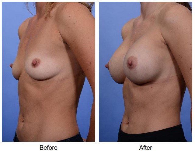 case 66 breast augmentation