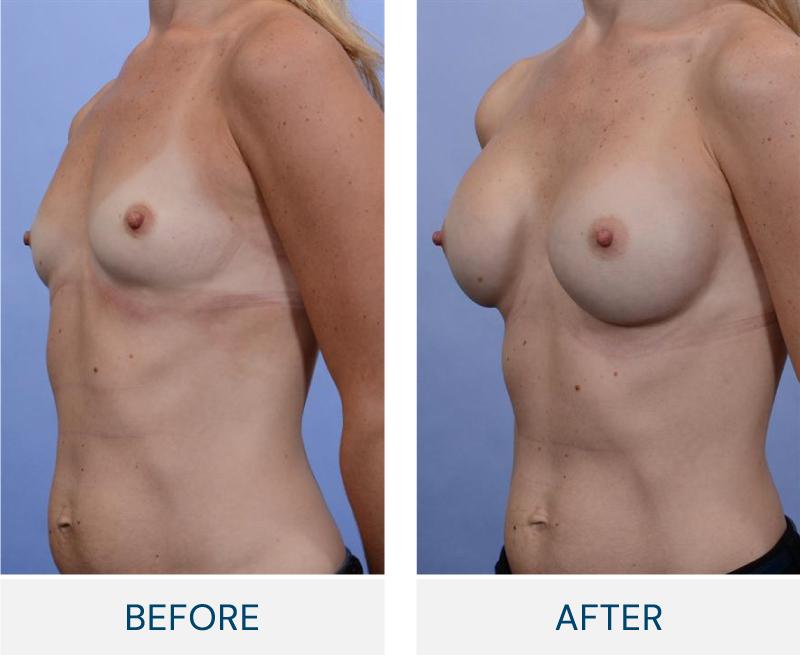 case 71 breast augmentation