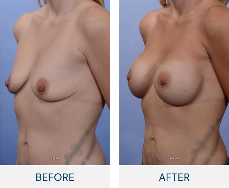 case 72 breast augmentation