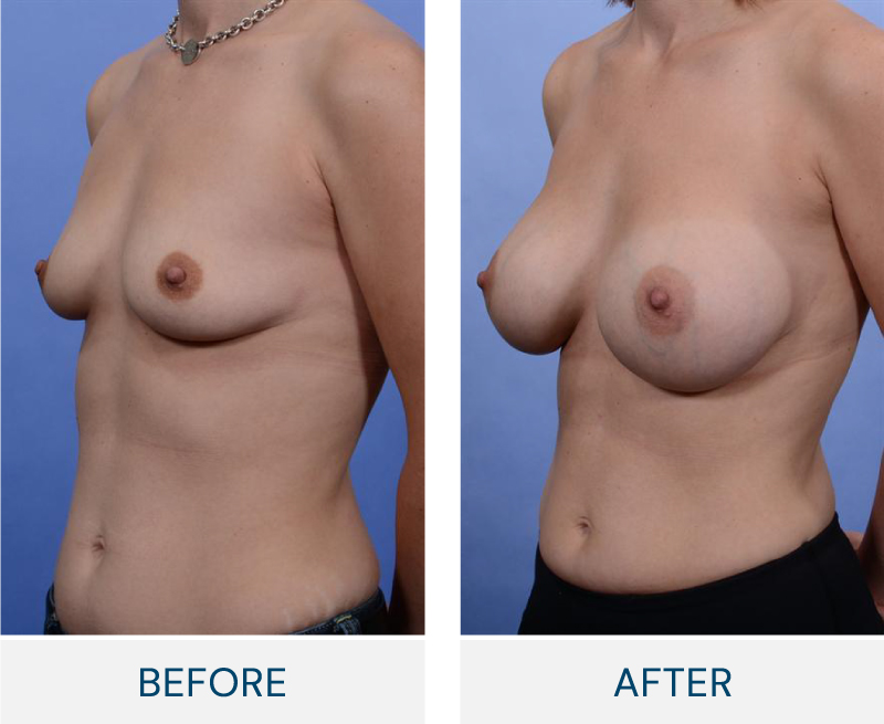 case 80 breast augmentation