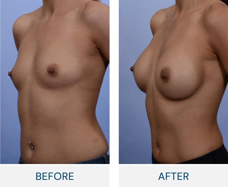 case 82 breast augmentation