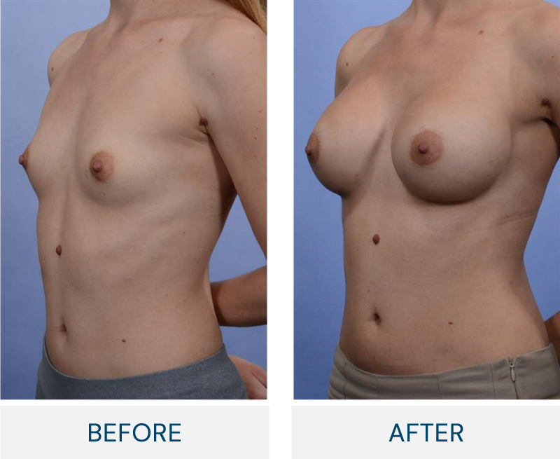 case 84 breast augmentation