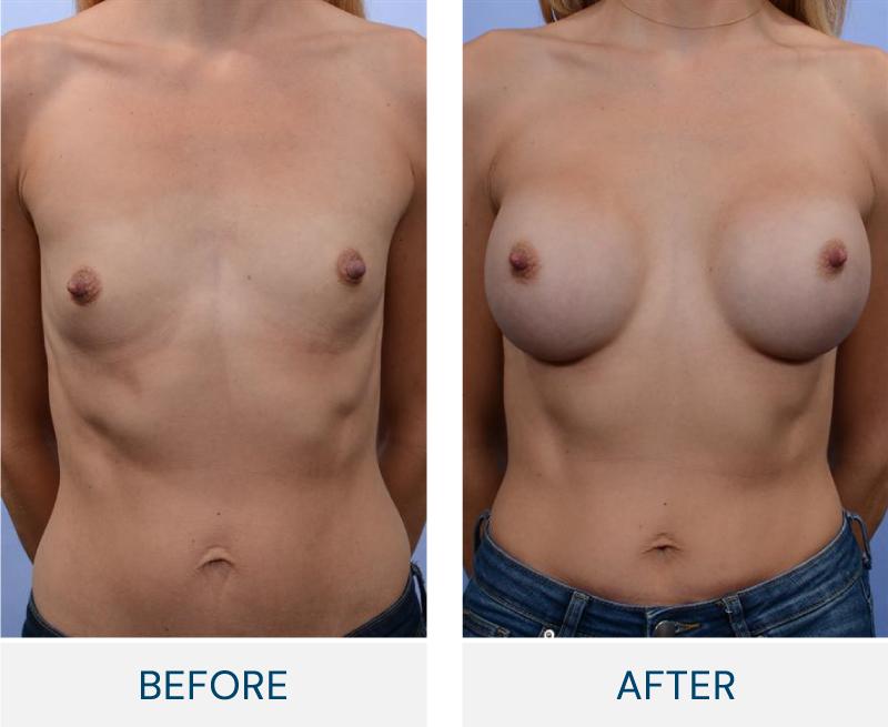 case 87 breast augmentation