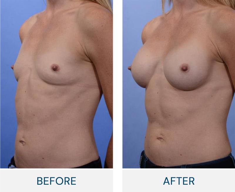 case 90 breast augmentation