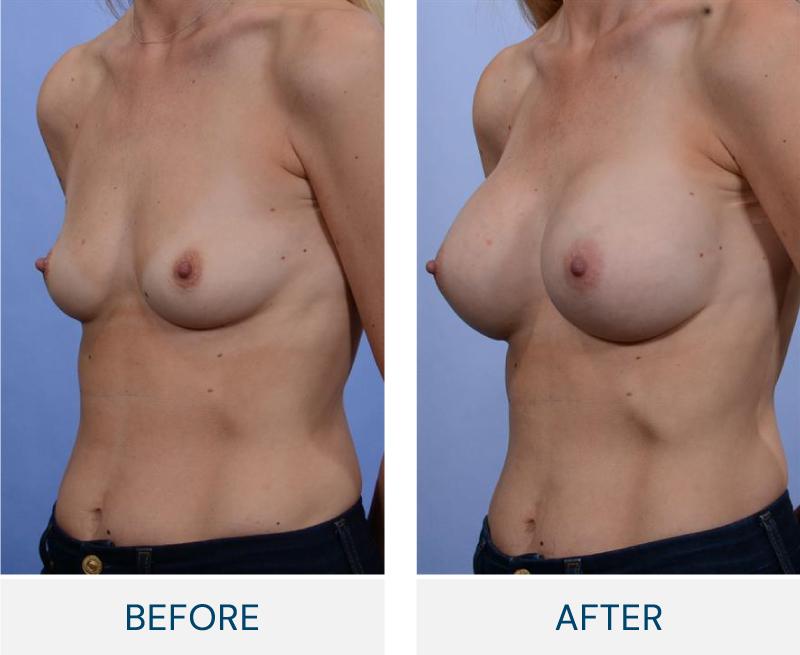 case 95 breast augmentation