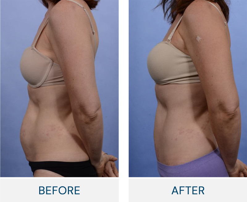 tummy tuck macleod trail plastic surgery before and after