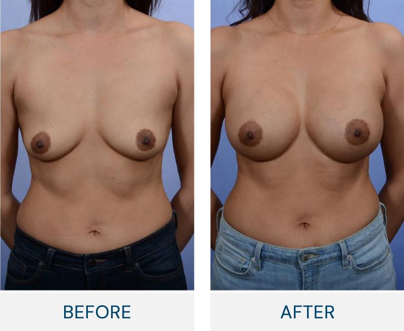 case 99 breast augmentation