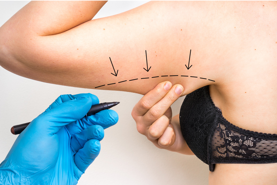 Marking off excess skin under the arm for Brachioplasty arm lift
