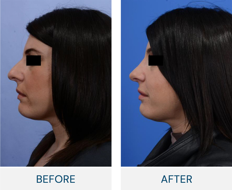 Rhinoplasty case 123