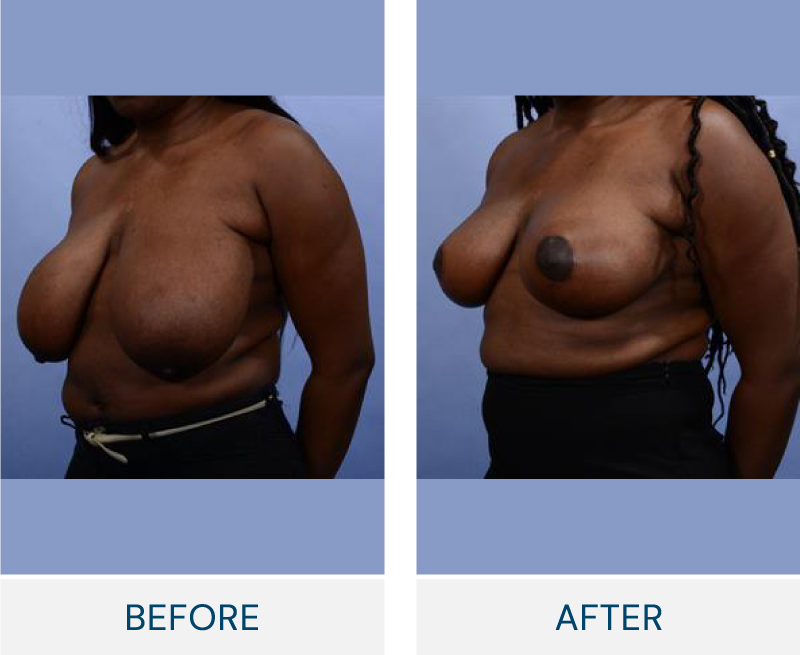 Breast Reduction case 131