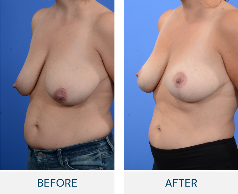 Breast Reconstruction case 118
